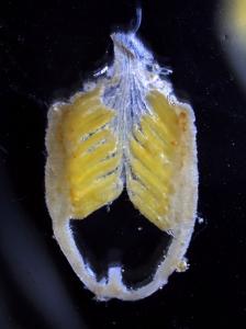 Ovarioles from Melanoplus pellucida